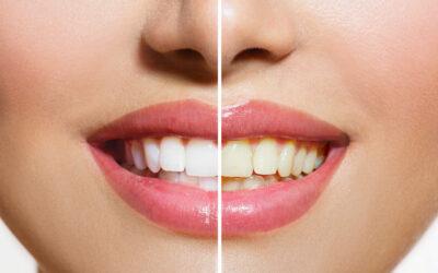 Diş Beyazlatma Evde Doğal Yöntemler ile Mümkün mü?