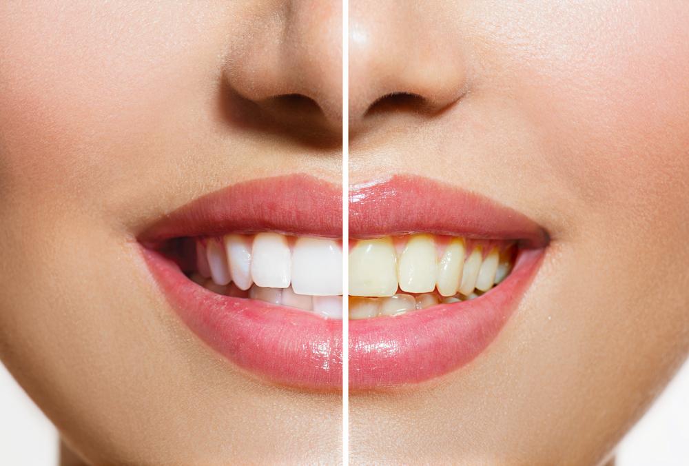 Diş beyazlatma doğal çözümler