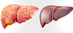 Karaciğer detoksu 3 günlük